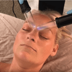 electro lymphatic drainage
